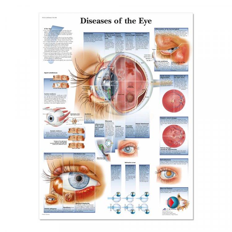 Αφίσα παθήσεων του οφθαλμού
