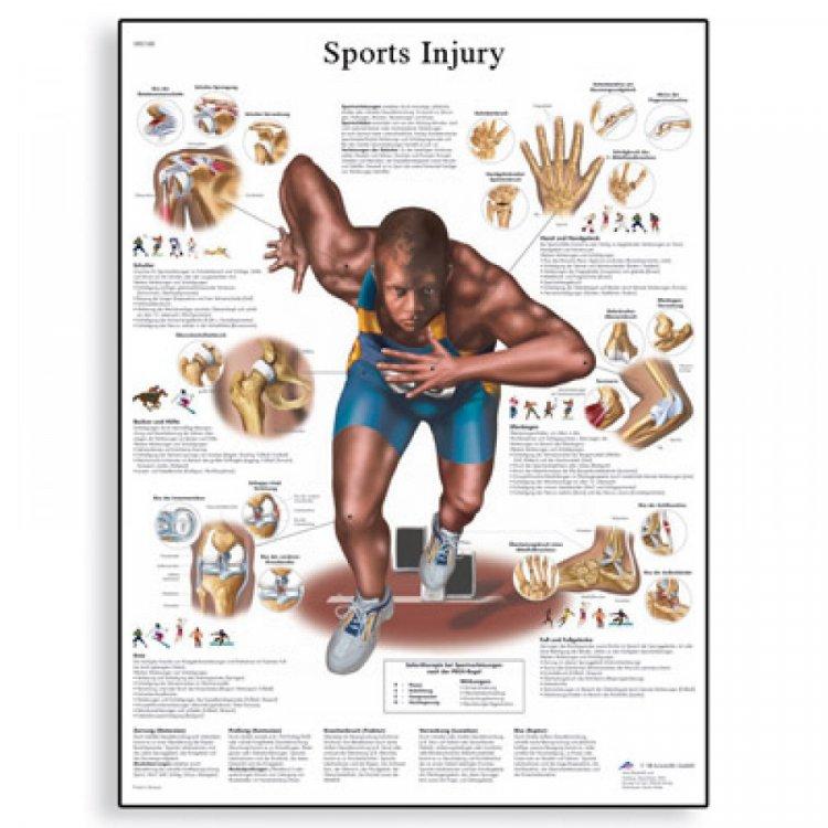 Αφίσα ανθρώπινων μυών