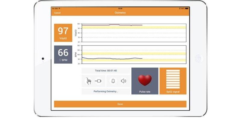 Spirobank II Smart MIR Spirometer