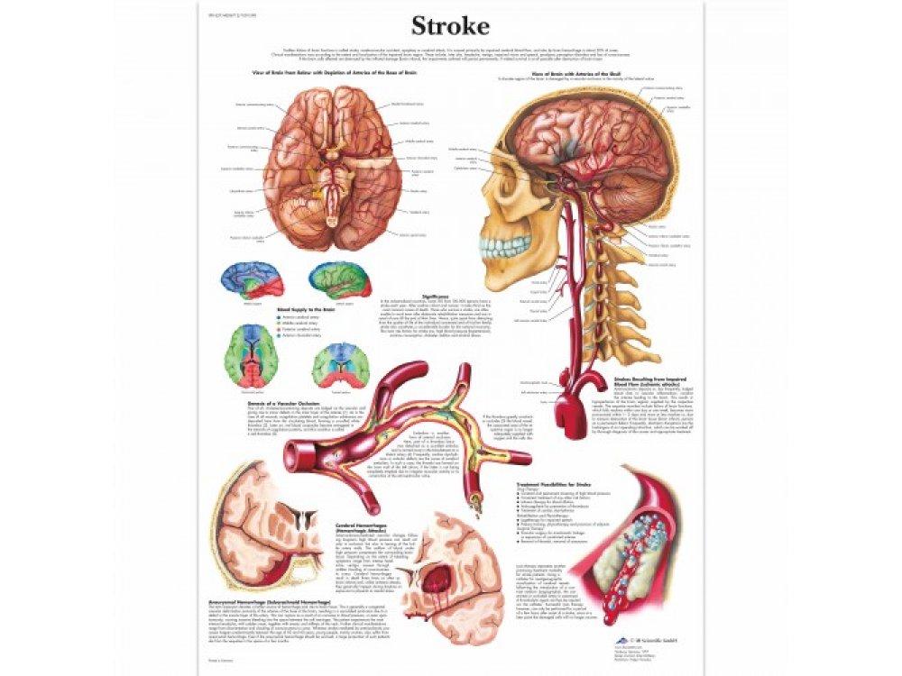 Αφίσα εγκεφαλικού