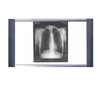 LED LCD 2-Screen X-ray Viewer